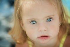 一个小女孩的情感有唐氏综合症的 免版税图库摄影