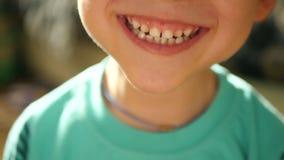 一个小孩子显示情感:笑声,幸福,喜悦,微笑 儿童的嘴的特写镜头 孩子展示牙 股票视频