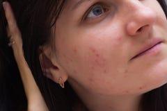 一个深色的女孩的画象有粉刺的在她的面孔,在一个女孩,特写镜头的面孔的红色丘疹,白种人 免版税库存图片