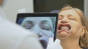 一个特别计算机程序的牙医被装载入片剂检查并且调控叮咬 给与片剂的照片 影视素材