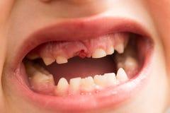 一个男孩的嘴没有牙的 库存图片