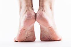 一个白色背景特写镜头的干燥脚跟妇女 图库摄影