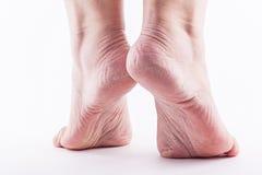 一个白色背景特写镜头的干燥脚跟妇女 免版税库存图片