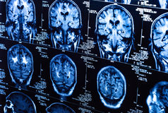 一个组人脑的计算机辅助测试扫描 免版税库存图片
