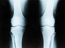 一个资深男性正确和左膝盖的X-射线 免版税库存图片