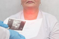 一位医生的患者以节状甲状腺的甲状腺病,特写镜头,医疗,炎症 免版税库存图片