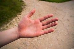 一名妇女的受伤的手在旅游步行的秋天以后 库存图片