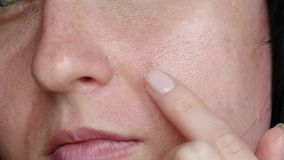 一名妇女的画象有问题皮肤的 妇女应用奶油、血清或者医学对待粉刺 扩大的毛孔 ?? 影视素材