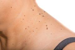 一名妇女的皮肤有痣的 免版税库存照片