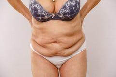 一名年长妇女站立向前倾身并且显示腹部的折叠有她的胳膊的 您能也看到静脉曲张 库存照片