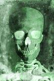 一块人的头骨的无线电报 图库摄影
