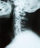一块子宫颈脊椎(脖子)的X-射线  免版税库存照片