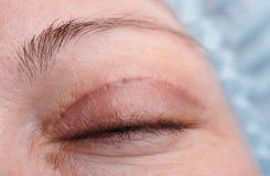 上部眼皮的Blepharoplasty 免版税库存照片