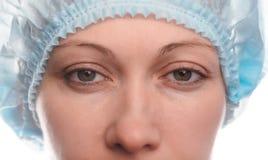 上部眼皮的Blepharoplasty 图库摄影