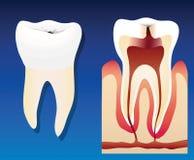 不健康的牙 向量例证