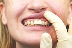 不幸地被种入的牙插入物特写镜头  图库摄影