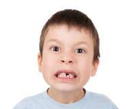 与一颗失去的牙的男孩画象 免版税库存图片