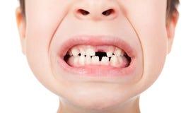 与一颗失去的牙的男孩画象 图库摄影