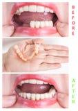 与上部和更低的假肢的牙齿修复,在治疗前后 免版税库存照片