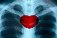 与心脏的医疗结构的X-射线图象人的胸口 免版税库存照片
