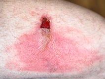 与水泡的皮肤烧伤在男性臀部 免版税库存照片