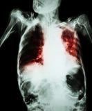 与深刻呼吸失败(老耐心展示齿龈音和细胞间的infiltratio的影片胸部X光的肺结核 免版税库存照片