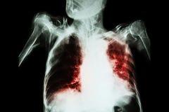 与深刻呼吸失败(老耐心展示齿龈音和细胞间的infiltratio的影片胸部X光的肺结核 免版税图库摄影