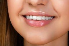 与漂白牙的美好的微笑 免版税图库摄影