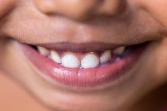 与牙的儿童微笑 免版税库存图片