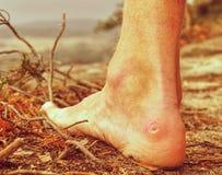 与痛苦的脚跟创伤的赤裸脚本质上 人脚 免版税库存照片
