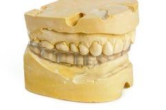 与白垩模型的牙齿叮咬 免版税库存图片