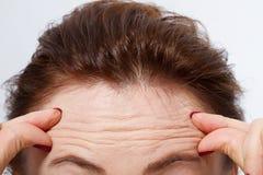 与皱痕的宏观妇女面孔在前额 胶原和面孔射入概念 更年期 播种的图象 复制空间和moc 图库摄影