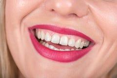 与笑的妇女面孔 白色牙和红色唇膏在使用中 演播室照片写真 库存照片