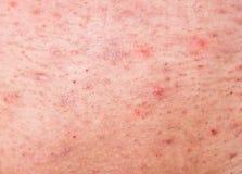 与粉刺的人力皮肤 免版税库存照片