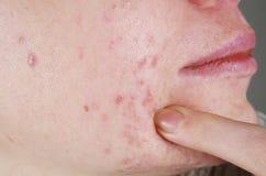 与粉刺问题的皮肤 免版税库存图片
