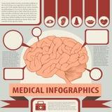 与脑子和文本的医疗infographics 皇族释放例证