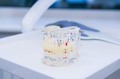 与被种入的假牙的玻璃下颌模型运作的牙齿桌表面上 图库摄影