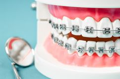 与金属线牙齿括号的牙模型 图库摄影