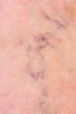与静脉曲张的皮肤 库存图片