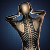 与骨头的人的造影扫描 免版税库存图片