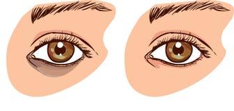 与黑暗的圈子的妇女` s面孔在眼睛下 概念o 库存例证