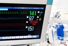 与ECG显示器的出生ICU 免版税库存照片