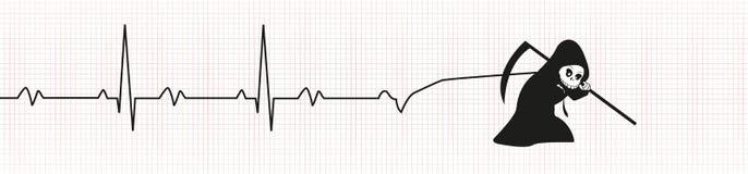 与EKG的死亡 免版税库存照片