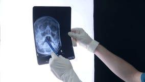 专业医生与X-射线扫描一起使用 股票视频