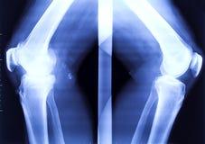 两个弯曲的膝盖的X-射线 免版税库存照片