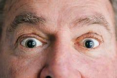 两只膨胀的眼睛 免版税库存图片