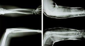 两条人的胳膊X-射线  免版税库存图片