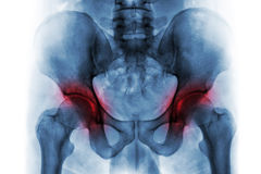 两的关节炎臀部 人的骨盆影片X-射线  免版税库存图片