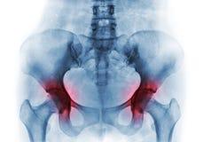 两的关节炎臀部 人的骨盆影片X-射线  免版税图库摄影