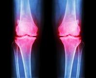 两的骨关节炎膝盖 影片X-射线AP (先前-后部)膝盖展示狭窄联接空间,骨赘(踢马刺), subcond 库存图片